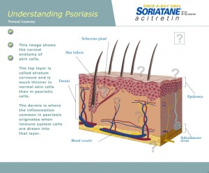 Soriatane Interactive Animation